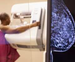 Susan G. Komen Suggests Non-Symptomatic Women Delay Routine Breast Cancer Screening This Spring